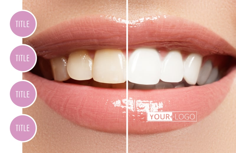 Teeth Whitening Technology Postcard Template Preview 2